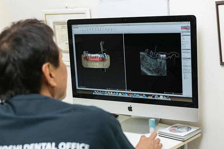 インプラント治療は口内を最適な状態にしてから実施します