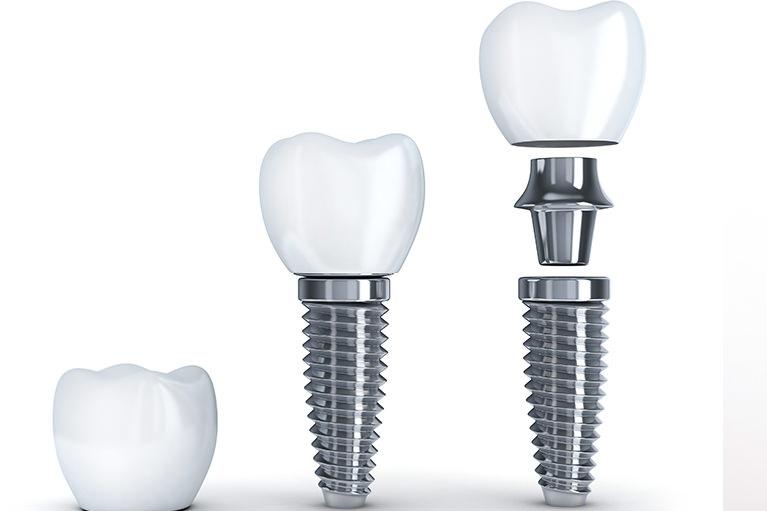 自分の歯を残すことを考えたインプラント治療