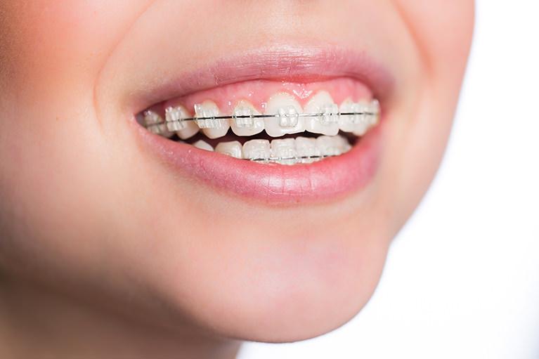 矯正歯科とのコミュニケーションで、総合的な歯の治療を行います