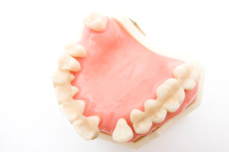 歯周病は全身疾患の元にもなる怖い病気。自覚症状がないので定期検診を